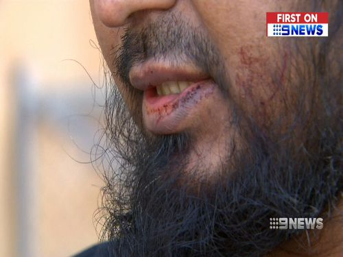 The driver was chased to Whitehorse Road before the thieves stole his mobile phone and fled on foot. Picture: 9NEWS.