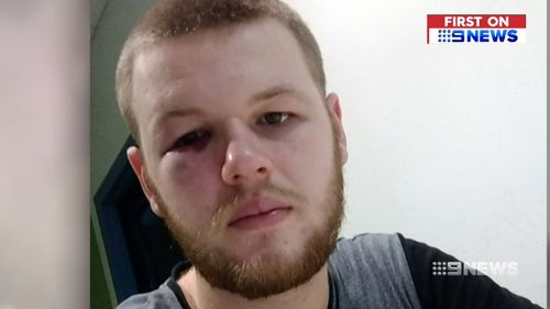 Tioram McDonough was left bruised following the assault.