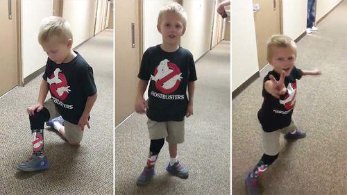 Liam Brenes, 4, trials his new prosthetic leg. (Twitter/@ABC7JulieSone)