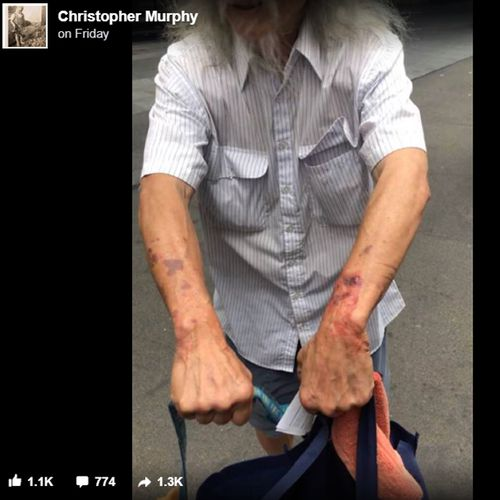 A photo purporting to show bruises on Danny Lim, shared on Facebook after his arrest.