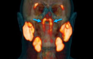 New organ in the human throat may have been discovered