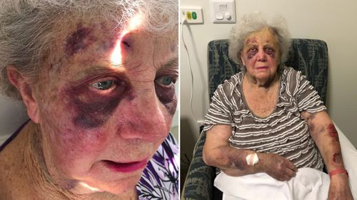 She suffered two black eyes and was covered in bruises.