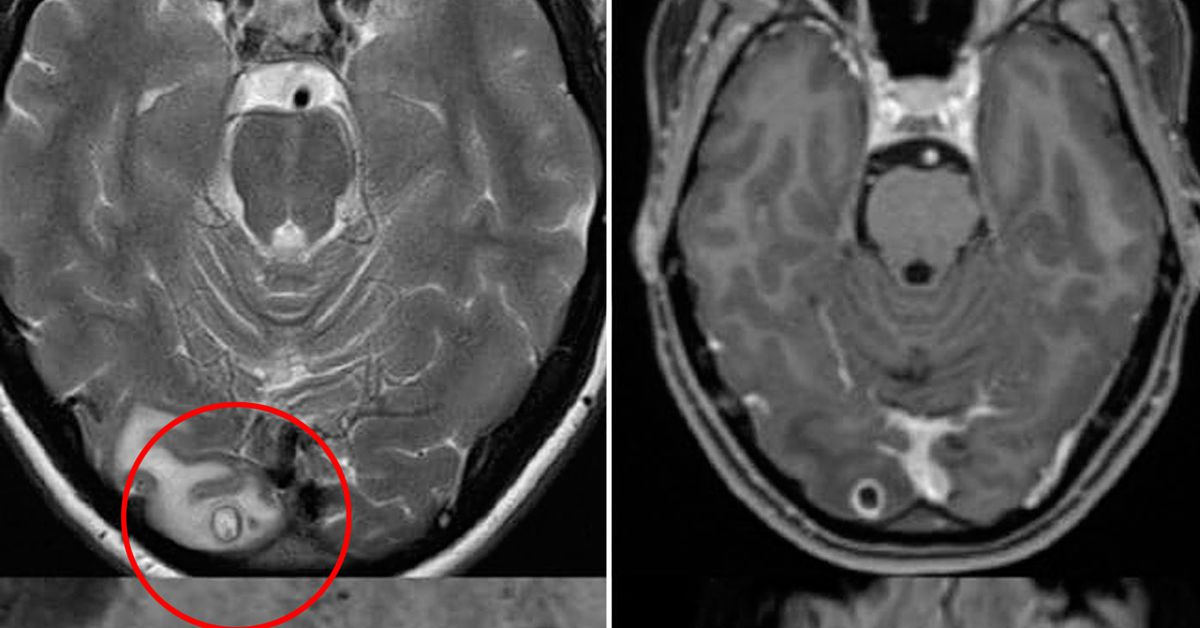 Doctors mystified by clump of tapeworm larvae in Melbourne woman's brain – 9News