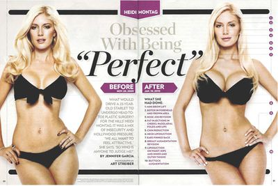 "<b>Heidi Montag</b> kept the cosmetic surgery industry alive by getting 10 procedures done in one sitting, unveiling her new, Frankenstein-meets-Barbie creation in January.<p><br/>Related: <a href=""http://www.ralph.ninemsn.com.au/glance/1031320/heidi-montag-has-hit-a-boob-limit"">Heidi Montag has a boob limit!</a></p><br/>"