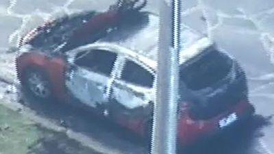 Man suffers serious burns in car fire