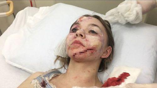 The Canadian actress was hospitalised with significant facial injuries.  (Tapper Cuddy LLP)