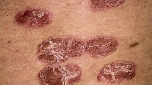 A new class of targeted treatments have become available in Australia for people suffering from psoriasis.