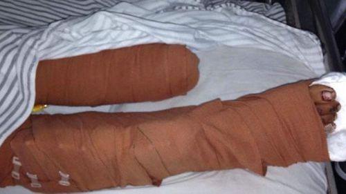 Putu's injuries were devastating.