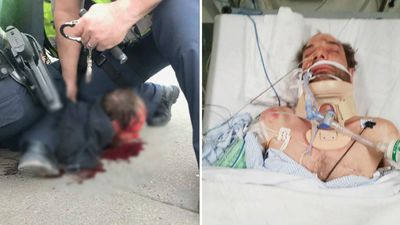 'Horrified' mum watched as police 'beat epileptic son'