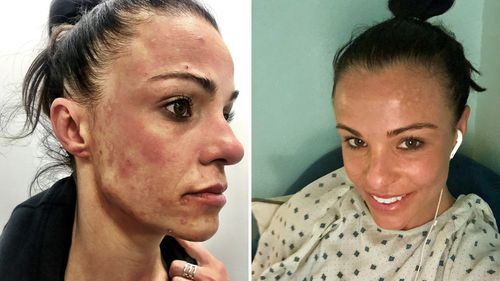 Carly Buhagiar says she suffered from skins lesions, rashes, weight and hair loss as a result of the mould. She is pictured here before and after her treatment in the US. (Photo: Carly Buhagiar)
