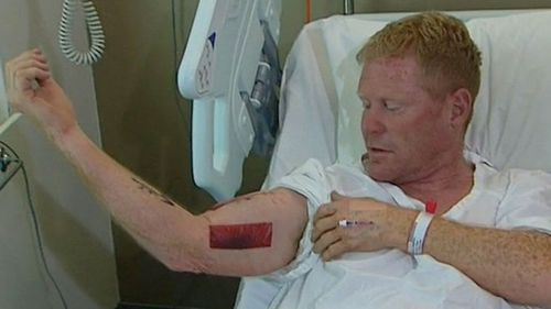 Last month, a mine worker had a shark latch onto his arm off a NSW nudist beach.
