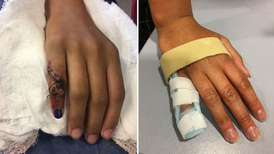Pre-teen's finger almost severed on Easter Show ride