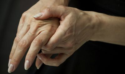 <strong>12. Cracking your knuckles causes arthritis – MYTH</strong>