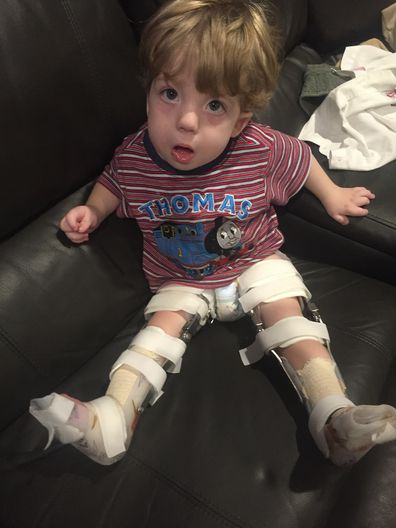 He was unable to use his legs until surgery when he was a toddler.