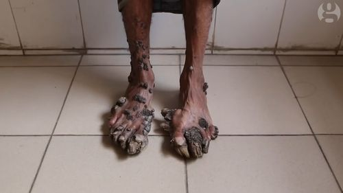 Abul Bajander's skin condition is similar to HPV and causes tree like bark to grow over his body.