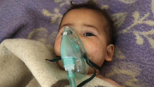 A Syrian child received treatment after the suspected toxic gas attack. (AFP)