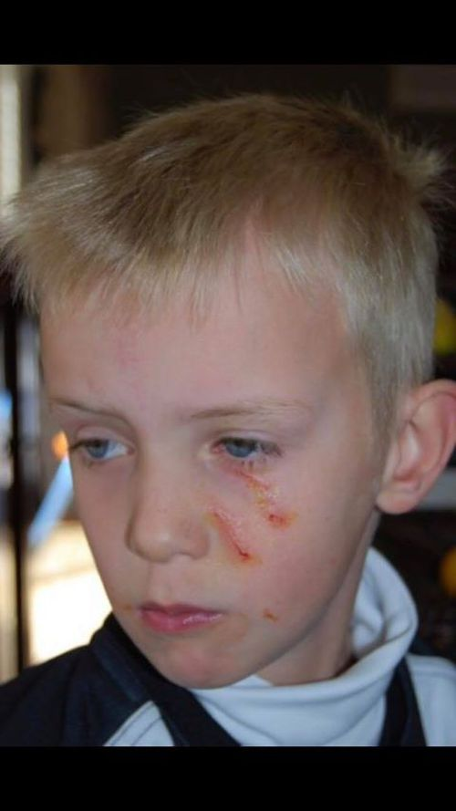 Ben Hynes was left with several scratches to his face after a magpie went against normal swooping behavior and targeted his face.