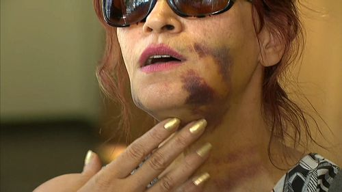 An Iranian tourist has been bashed at Cottesloe Beach in Perth by two men asking for cigarettes.