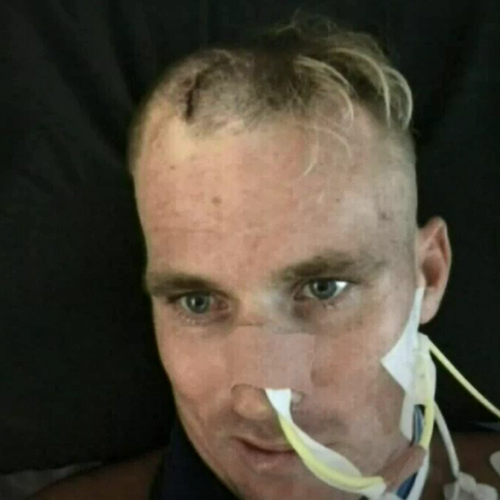 29-year-old Gold Coast tradie Brock Prime suffered brain damage from the attack.