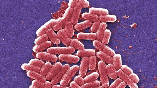 A strain of E. coli. (AFP file image)