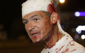 Pics of the week: Belarusians bloodied in election aftermath