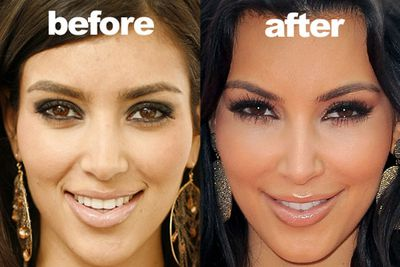 Kim revealed on a TV chat show that she was not against plastic surgery and had actually tried botox before!