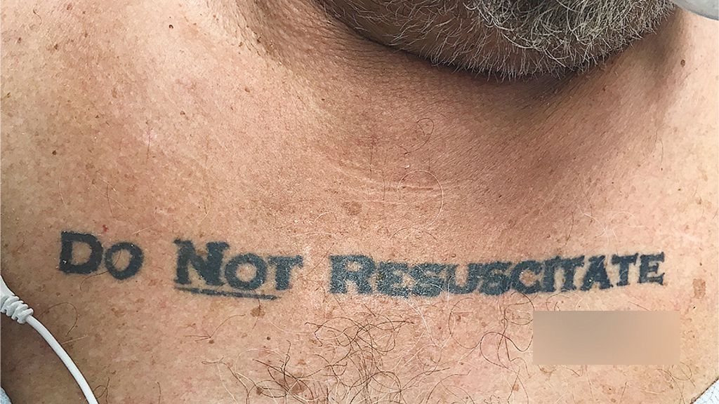 Miami doctors face conundrum with 'do not resuscitate' tattoo