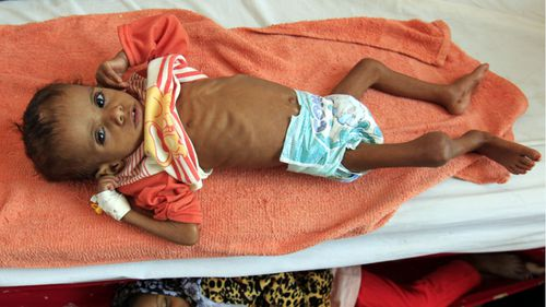 'Civilians in Yemen are not starving, they are being starved.'