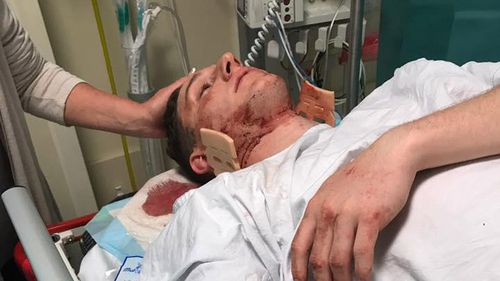 The attack left victim Mitch Davis with bleeding on the brain and requiring eight stables in his head. (Facebook/Jen Davis)