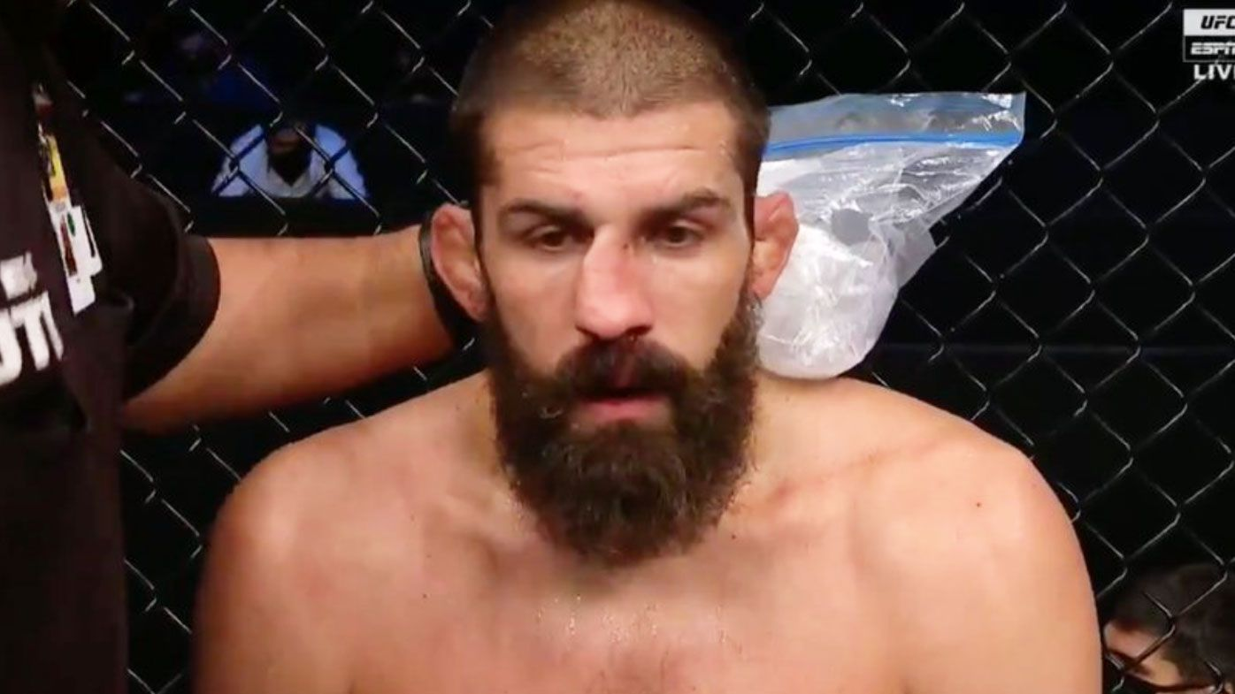 UFC: Court McGee's nose gruesomely crushed after brutal Carlos Condit strike