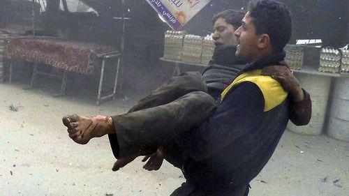 A man carries an injured survivor after the air strikes. (Photo: AP).