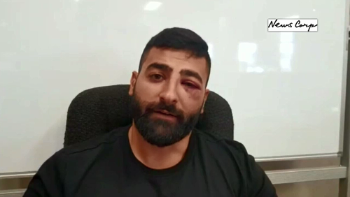 Khader Elali is unable to return to work until doctors give him clearance after his hearing aid was damaged in a road rage attack.