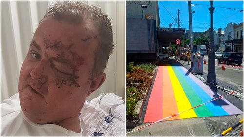 The 36-year-old was bashed on Smith Street, which is known to celebrate the LGBTI community. (Victoria Police/ Fitzroynet)