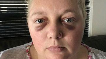 Nurse bashed and stabbed in violent home invasion