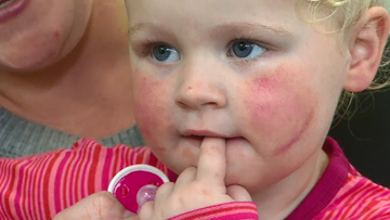 New eczema treatment putting sufferers into remission