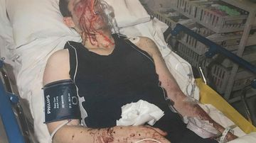 Couple assaulted after thugs storm home in case of mistaken identity