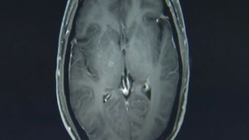 The man had hundreds of parasitic tapeworms in his brain and chest after eating undercooked pork.