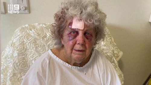 Mrs B was sent back to a nursing home while still wearing a hospital gown and with blood in her hair.