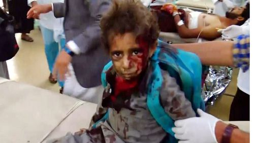 A handout video grab photo made available by the Houthi Movement showing a wounded Yemeni child receiving treatment at a hospital. Picture: AP