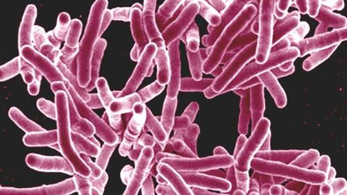 Tuberculosis scare: More than 20 patients screened at Sydney hospitals