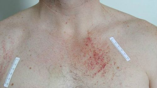 A picture released by the court shows injuries on Gerard Baden-Clay's upper torso.