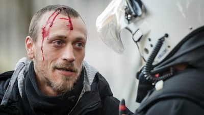 A bloodied rally participant. (AAP)