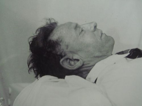 The Somerton Man shortly after autopsy