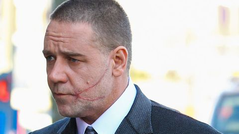 Russell Crowe's gnarly scar for Winter's Tale