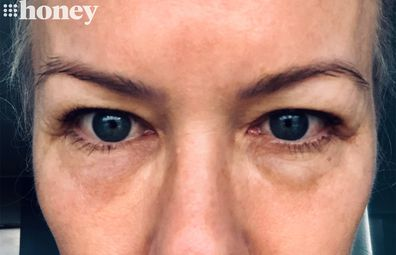 Sami Lukis' under-eye lumps years after dermal filler