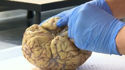 The Australian Sports Brain Bank is the first of its kind in the country. (9NEWS)
