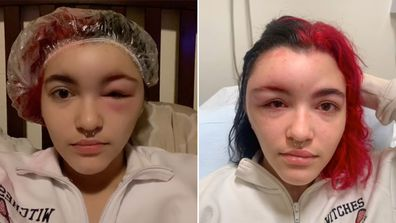 Teen suffers severe allergic reaction after dyeing her own hair: 'Scary experience'