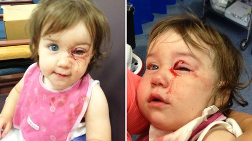 Justine Redwin's daughter Sylvie almost lost her eye after she became impaled on an accessory stand at a Terry White chemist.