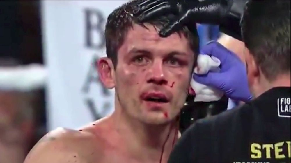 Stephen Smith's Ear Nearly Splits In Half In Gruesome Boxing Injury