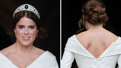 Princess Eugenie shows off her scoliosis surgery star at her recent wedding.